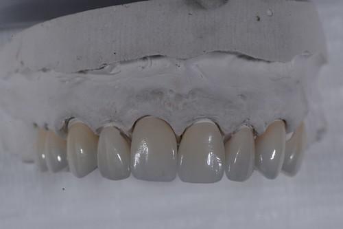 陶瓷貼片都很假嗎?權泓牙醫黃泓傑醫師巴西SKYN取經紀實 (19)