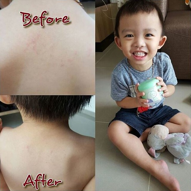 before and after results of boy using DNA Miracles Soothing Ointment
