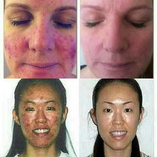 FREE ONGKIR!! Nu Skin Clear Action System untuk kulit berjerawat  Terbuat dari bahan-bahan alami dan melalui studi klinis yang cukup lama. Dalam 1 Packaging Box terdiri dari 4 item :  1. CLEAR ACTION CLEANSER : Membersihkan sampai ke dalam pori-pori. Difo