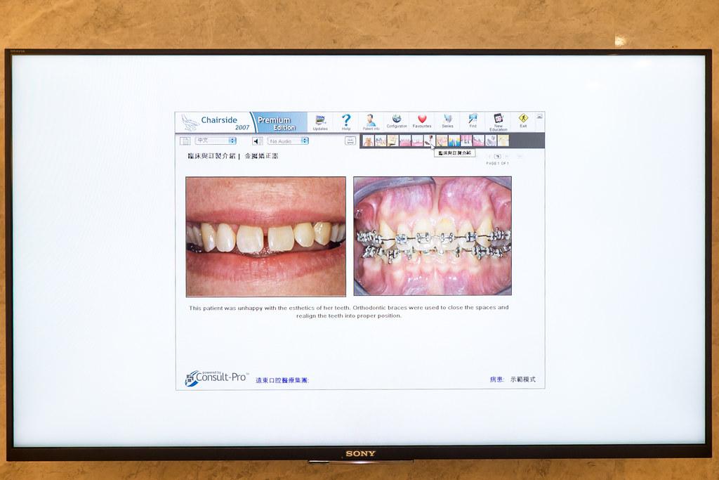 台南遠東牙醫林孟儒醫師專訪:牙醫不只可以醫牙,也可以醫美  (12)