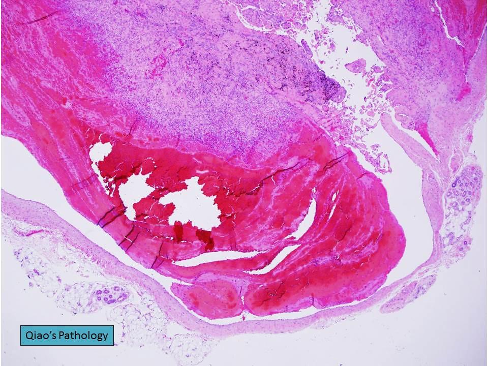 intravascular papillary endothelial hyperplasia Scientific article subcutaneous intravascular papillary endothelial hyperplasia: ultrasound features and pathological correlation ok hwa kim1 & yeon mee kim 2 & hye jung choo3 & sun joo lee3 & yeong mi kim 4 .