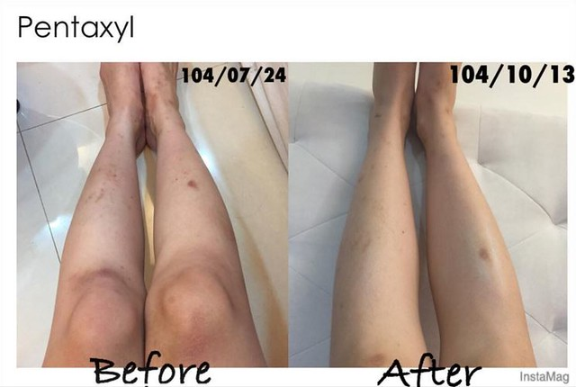 Before and after results of Pentaxyl - legs