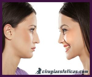 cirugia de nariz