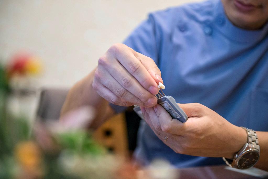 白牙萬事順,一切都要從到人本自然牙醫做牙齒美白陶瓷貼片說起  (6)