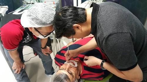 陶瓷貼片都很假嗎?權泓牙醫黃泓傑醫師巴西SKYN取經紀實(26)