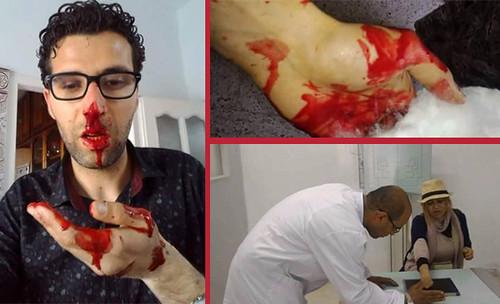Nessma TV Journalists Assaulted on Kerkennah