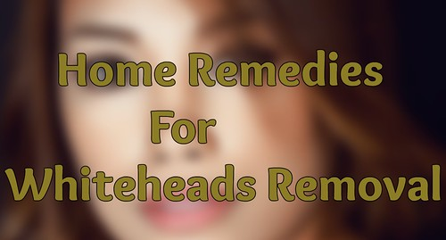 How to remove whiteheads naturally get rid of