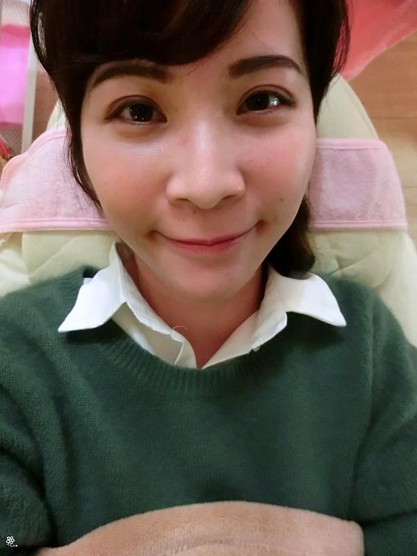 美麗晶華診所台北醫美推薦飛梭紅寶石雷射 (3)