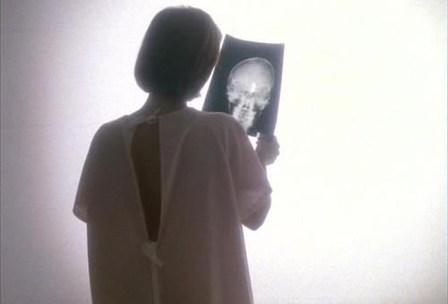 The X-Files - S04 - Memento Mori - 1