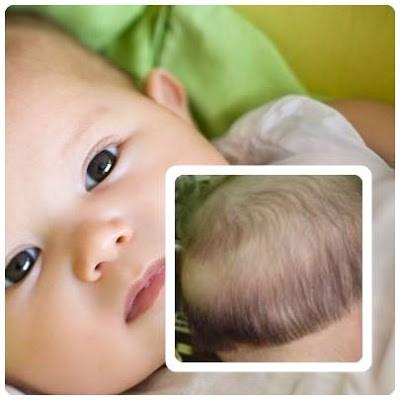 Những tín hiệu và cách phòng chống khi con bạn bị thiếu canxi 3