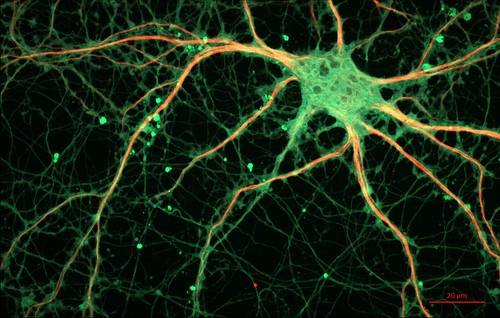 Cultured Rat Hippocampal Neuron