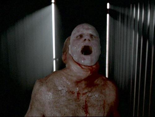 The X-Files - S04 - Leonard Betts