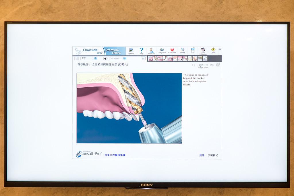 台南遠東牙醫林孟儒醫師專訪:牙醫不只可以醫牙,也可以醫美  (14)