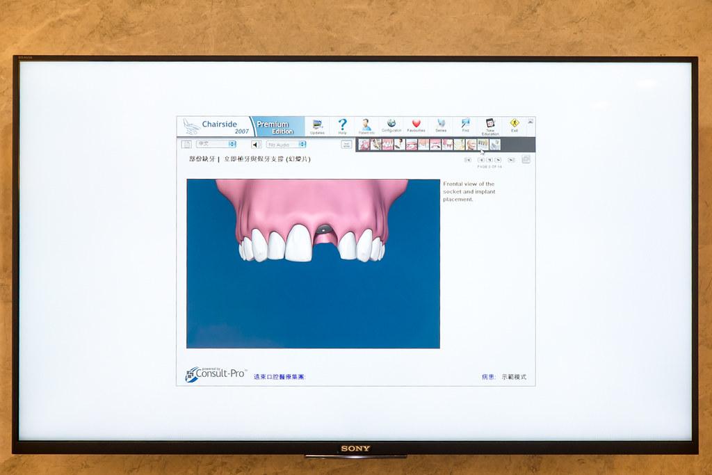 台南遠東牙醫林孟儒醫師專訪:牙醫不只可以醫牙,也可以醫美  (1)