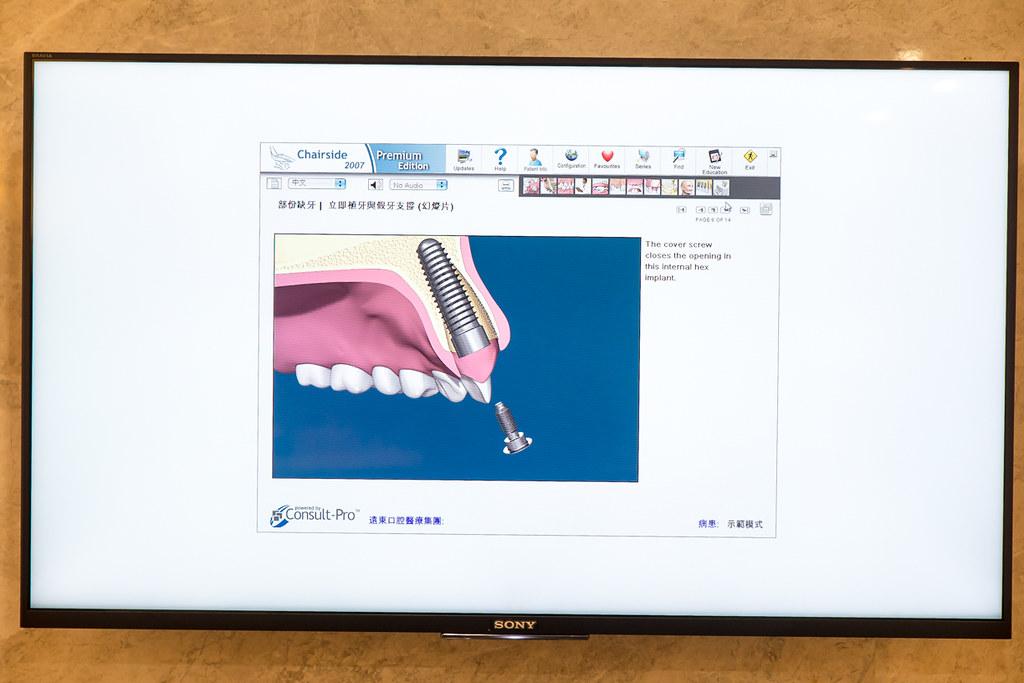 台南遠東牙醫林孟儒醫師專訪:牙醫不只可以醫牙,也可以醫美  (15)