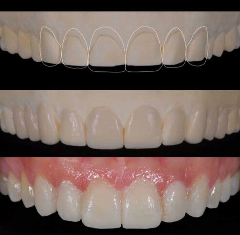 陶瓷貼片也可以試用?台中權泓牙醫黃泓傑醫師這樣說! (4)