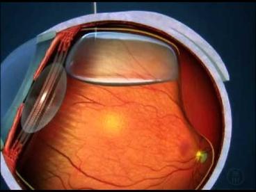 Phẫu thuật bơm khí nén cho mắt bị bong võng mạc