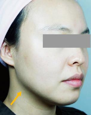 Ultra Skin-諮詢本(檔案3)-(200銅西A4)