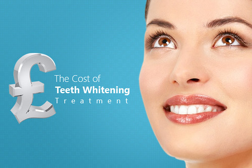 The Dentist Charges for Teeth Whitening Treatment