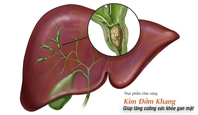 Sỏi đường mật trong gan có thành phần chủ yếu là bilirubin