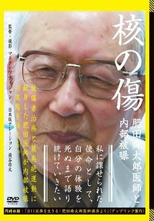 DVD『核の傷』