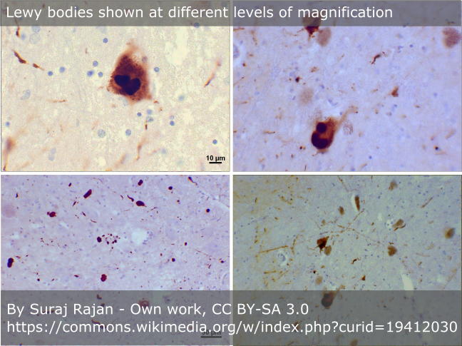 Image showing Lewy bodies at different levels of magnification