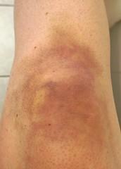 Knee versus ice