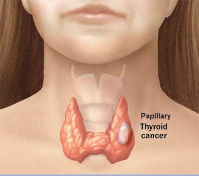 All About Papillary Thyroid Cancer Remedy And Treatments