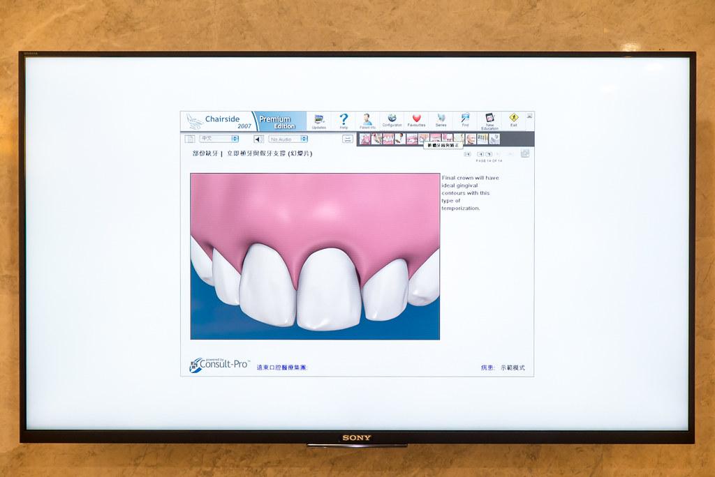 台南遠東牙醫林孟儒醫師專訪:牙醫不只可以醫牙,也可以醫美  (13)