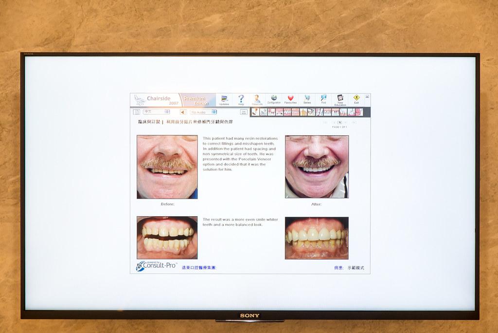 台南遠東牙醫林孟儒醫師專訪:牙醫不只可以醫牙,也可以醫美  (10)