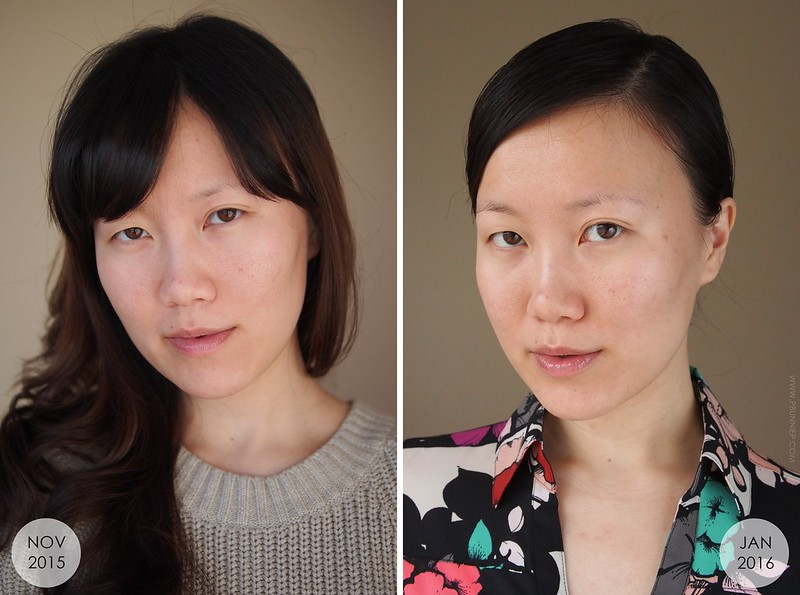 Sekkisei Skincare before after