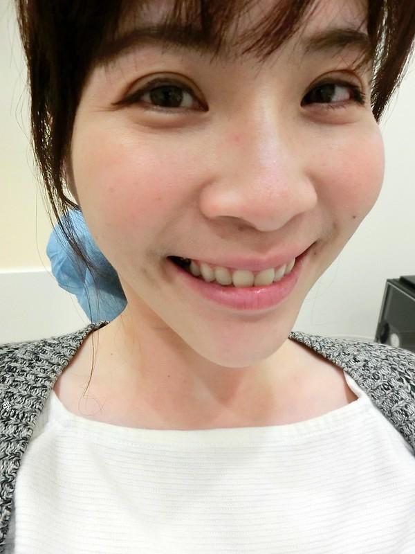 竹北真美牙醫診所-舒眠植牙中心 (38)