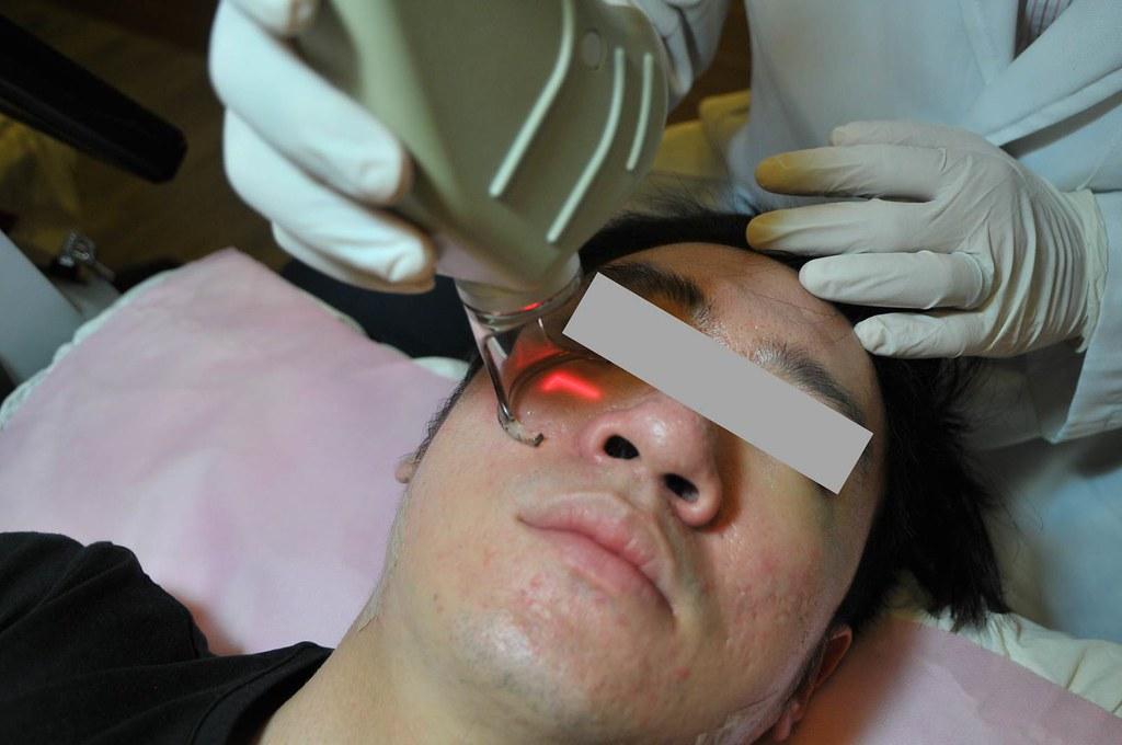 變身型男!台北采醫漾麗診所飛梭雷射救了我的痘疤、凹洞 (2)