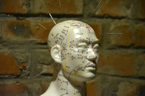 Acupuncture Installation