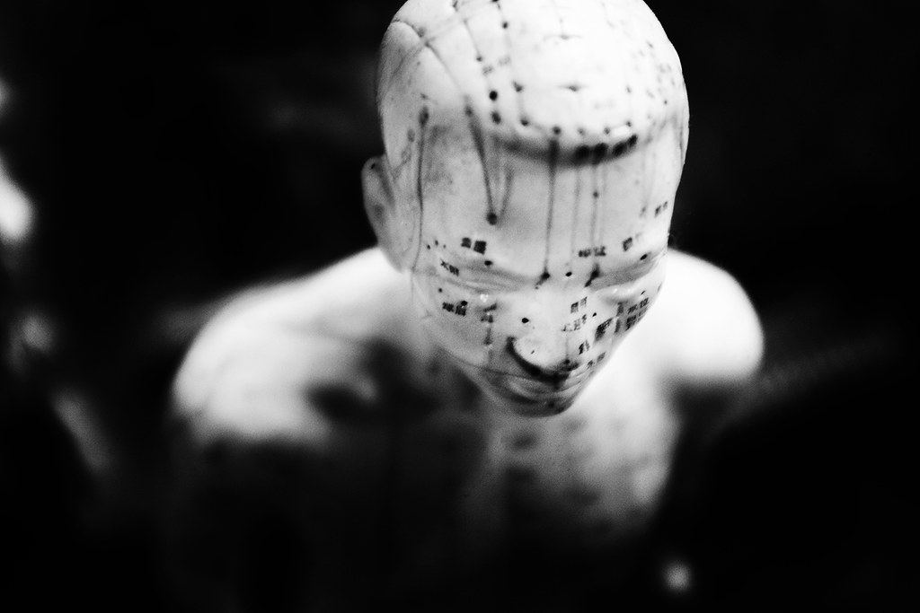 head - acupuncture