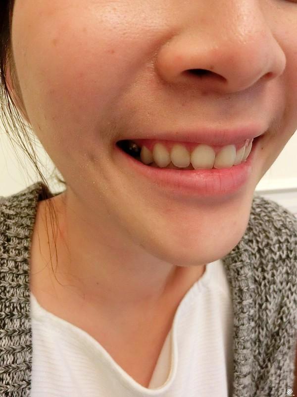 竹北真美牙醫診所-舒眠植牙中心 (41)