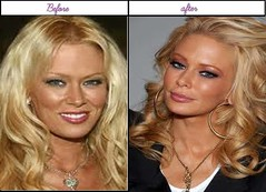How Famous Actress Jenna Jameson Been Through Plastic Surgery Her After And Before Pics