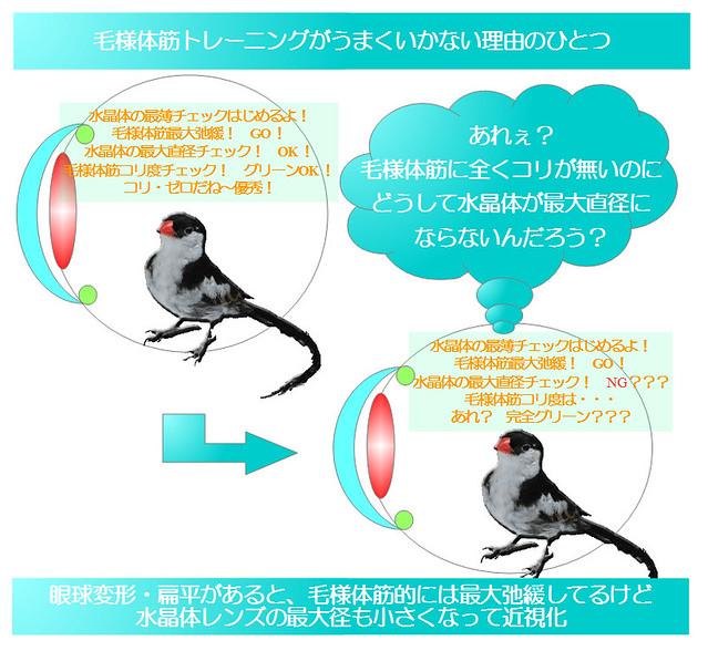 簡単図解シリーズ01|毛様体筋トレーニングがうまくいかない理由のひとつ|眼球変形していると毛様体筋がこり固まって無くても近視化するケースがある|視力回復コア・ポータル