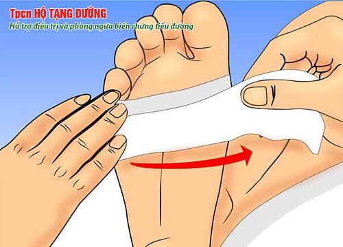 Cần chăm sóc tốt bàn chân để tránh đoạn chi
