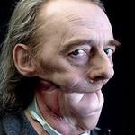 Cyril Crepin 我的模特都是嚴重毀容者6