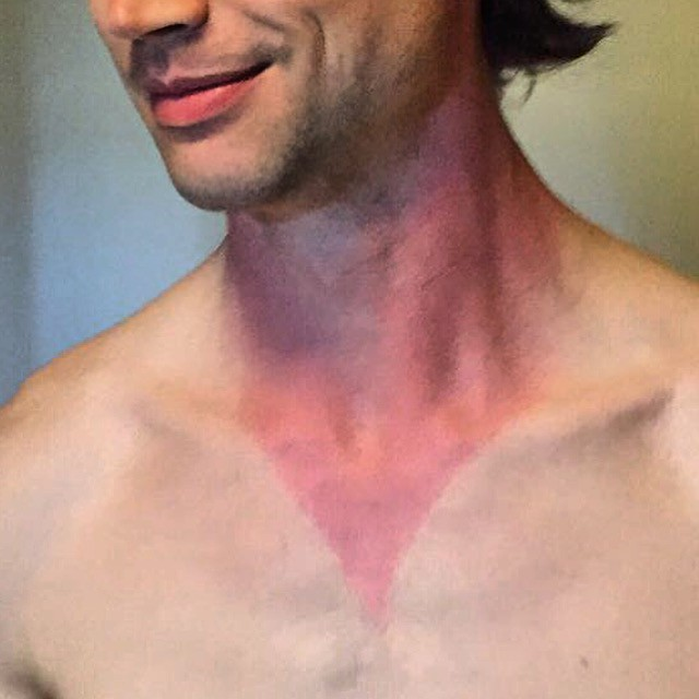 The sunburn I got after Day 2. Didn't realize I had such a deep neck line with my button down