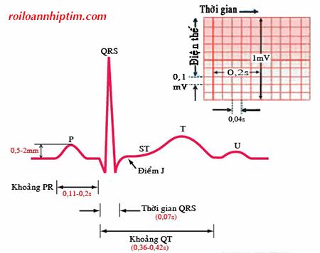 Phát hiện rối loạn nhịp tim qua điện tâm đồ