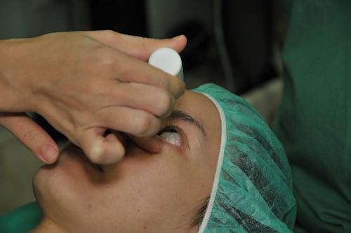 台北雙眼皮手術推薦│台北采醫漾麗診所分享訂書針雙眼皮手術 (4)