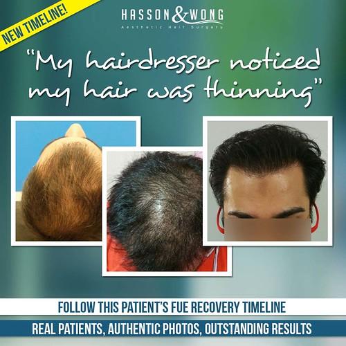 hair-transplant-thinning-testimonial-timeline-fb
