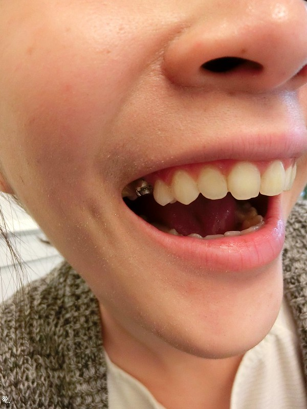 竹北真美牙醫診所-舒眠植牙中心 (42)