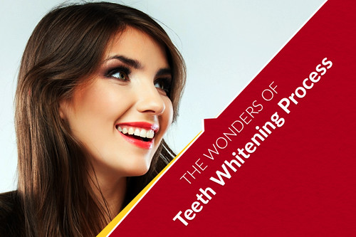 The Wonders of Teeth Whitening Process