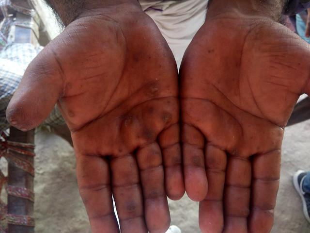 चेतरा के भुट्ठू खां के हाथ में अशुद्ध जल की निशानी काले धब्बे