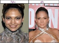 After Before Pictures Of Jennifer Lopez When She Experienced Her Plastic Sugery In Latest Year