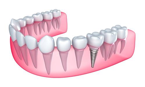 Dental Implants in Kalyan
