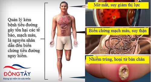 Bệnh tiểu đường có thể dẫn tới nhiều biến chứng nguy hiểm